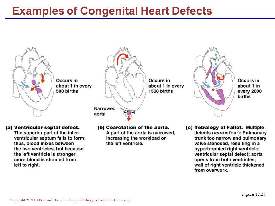 Examples of Congenital Heart Defects