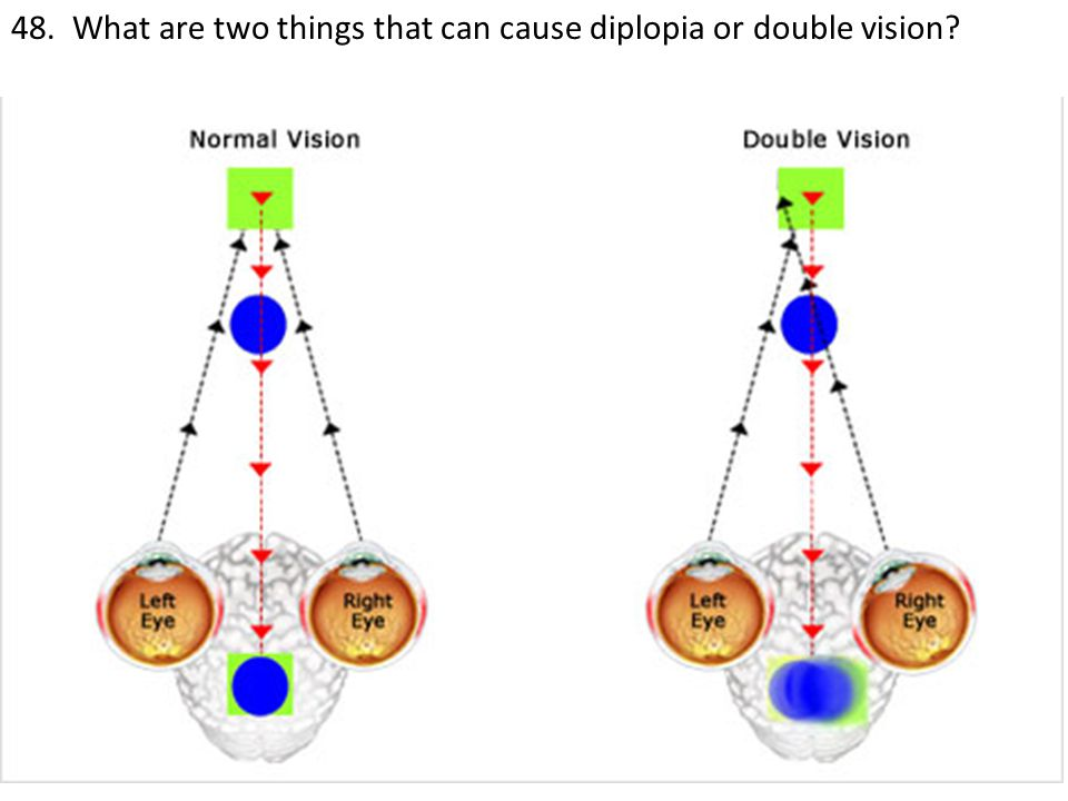 48. What are two things that can cause diplopia or double vision