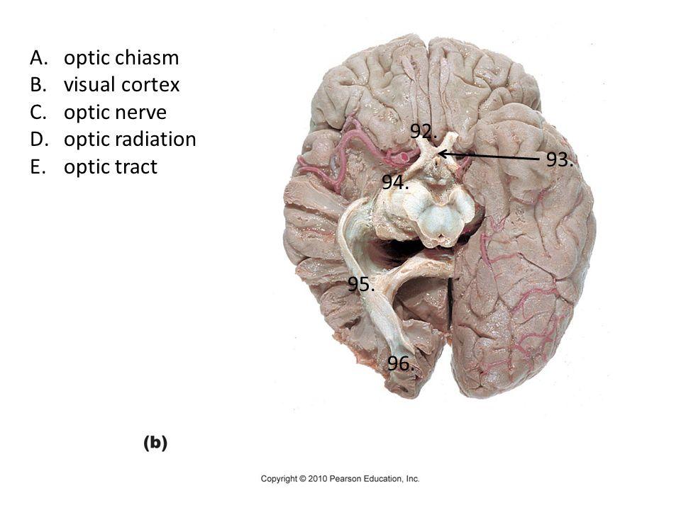 optic chiasm visual cortex optic nerve optic radiation optic tract 92. 93. 94. 95. 96.