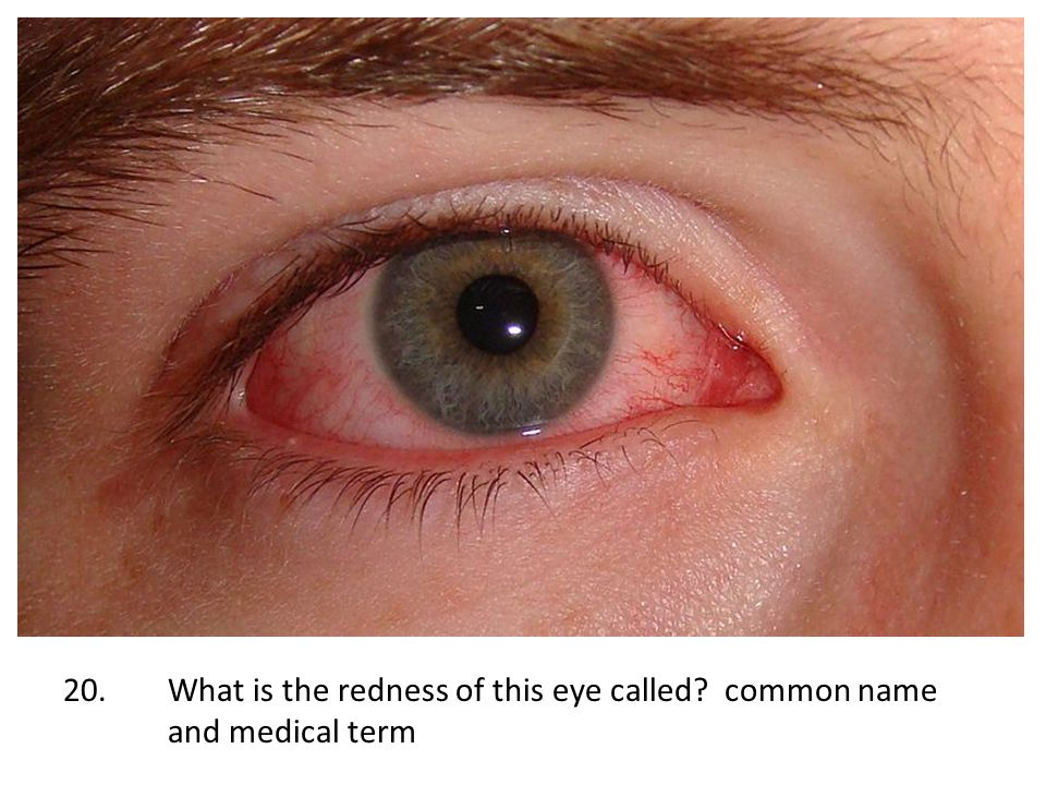 20. What is the redness of this eye called. common name