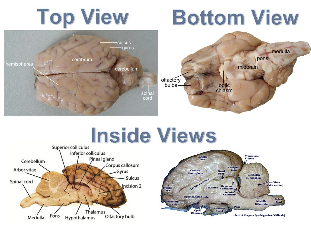 Top View Bottom View Inside Views