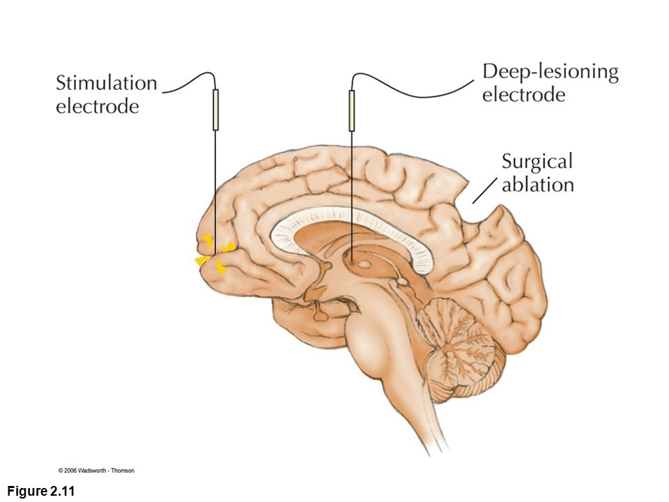 Figure 2.11 The functions of brain structures are explored by selectively activating or removing them. Brain research is often based on electrical stimulation, but chemical stimulation is also used at times.