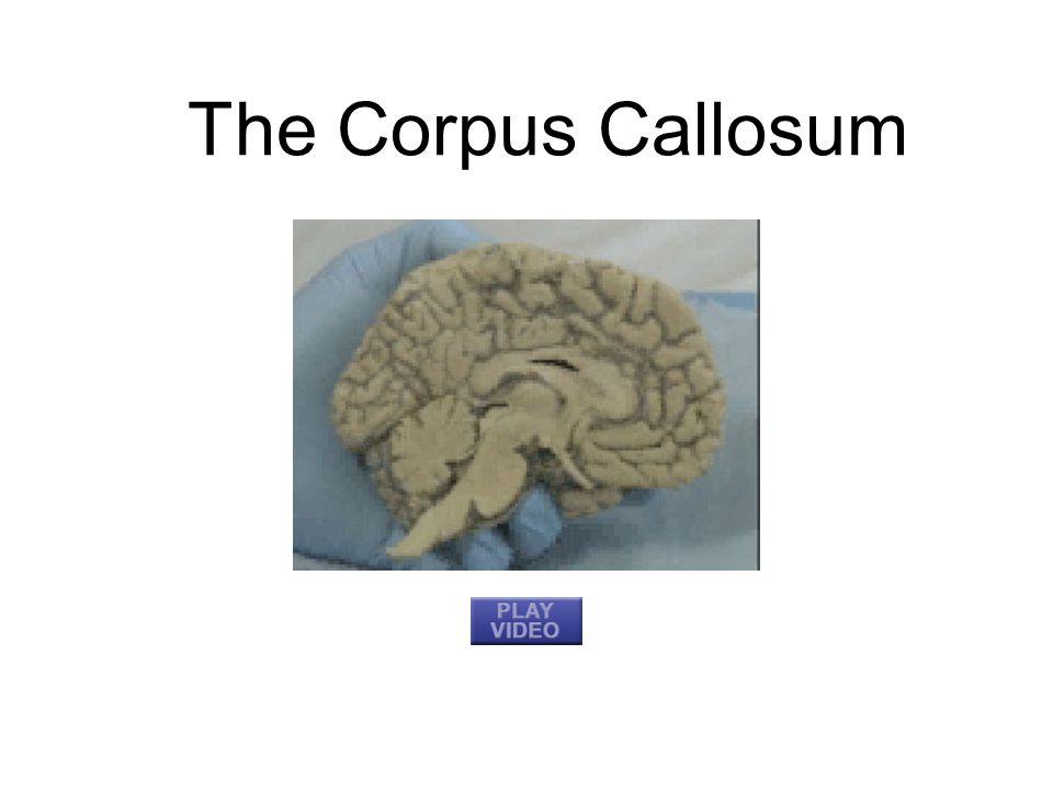 The Corpus Callosum