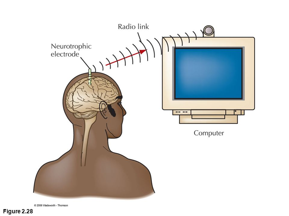 Figure 2.28 A direct brain-computer link may provide a way of communicating for people who are paralyzed and unable to speak. Activity in the patient's motor cortex is detected by an implanted electrode. The signal is then amplified and transmitted to a nearby computer. By thinking in certain ways, patients can move an on-screen cursor. This allows them to spell out words or select from a list of messages, such as I am thirsty.