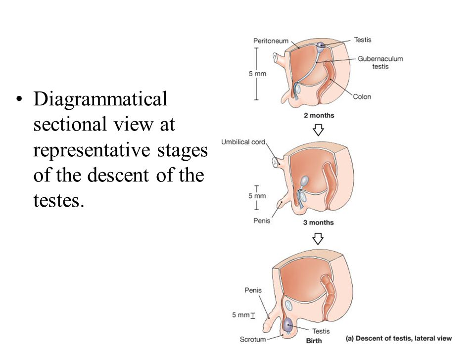 Diagrammatical sectional view at representative stages of the descent of the testes.