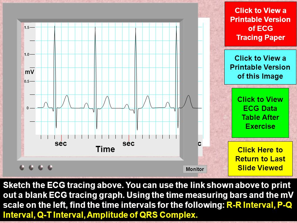 Time sec. Monitor. mV. 1.0. 0.5. 1.5. Click to View a Printable Version of ECG Tracing Paper.