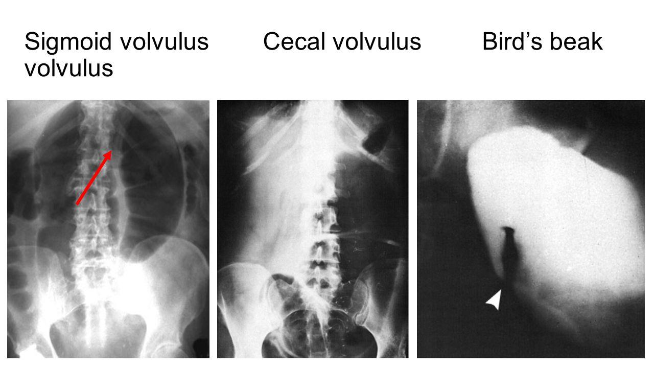 Sigmoid volvulus Cecal volvulus Bird's beak volvulus