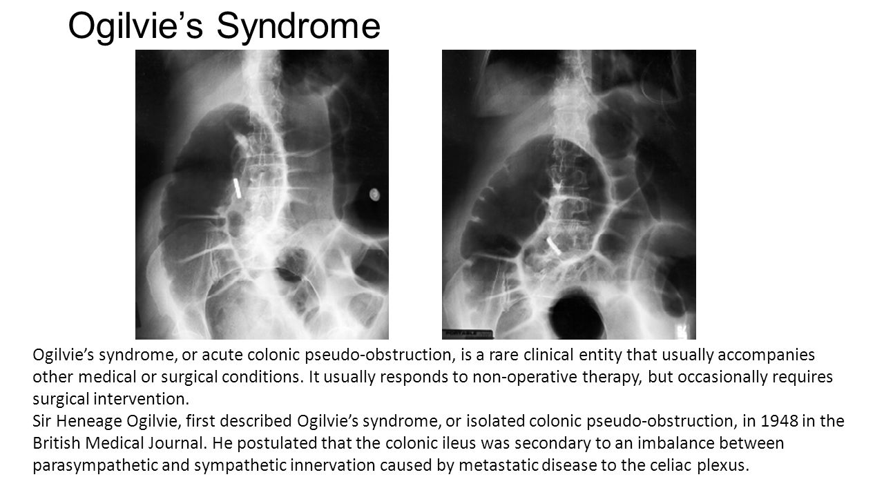 ogilvie syndrome