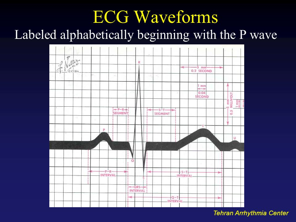 Labeled alphabetically beginning with the P wave