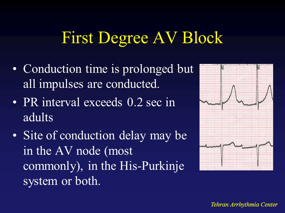 First Degree AV Block Conduction time is prolonged but all impulses are conducted. PR interval exceeds 0.2 sec in adults.