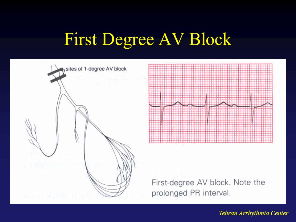 First Degree AV Block Tehran Arrhythmia Center