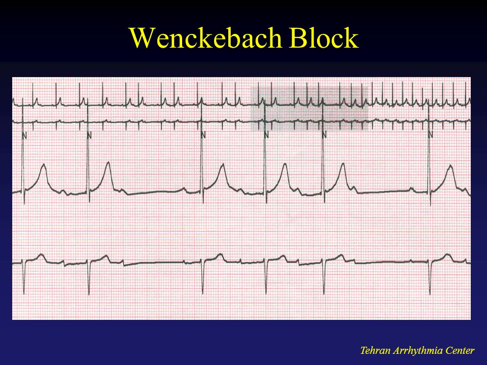 Wenckebach Block Tehran Arrhythmia Center