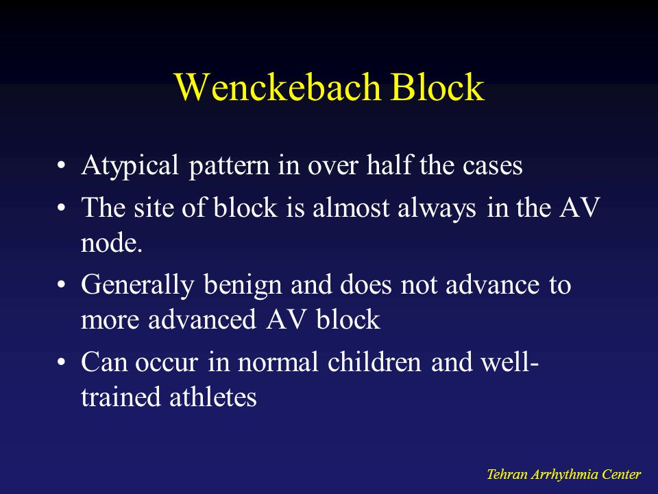 Wenckebach Block Atypical pattern in over half the cases