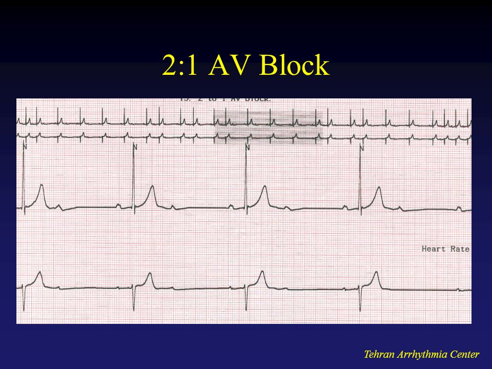 2:1 AV Block Tehran Arrhythmia Center