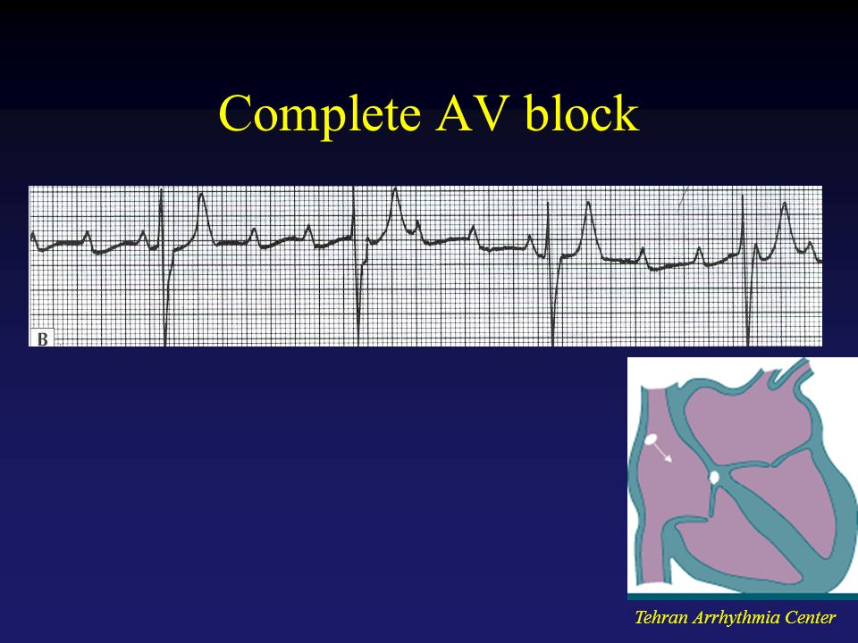Complete AV block Tehran Arrhythmia Center