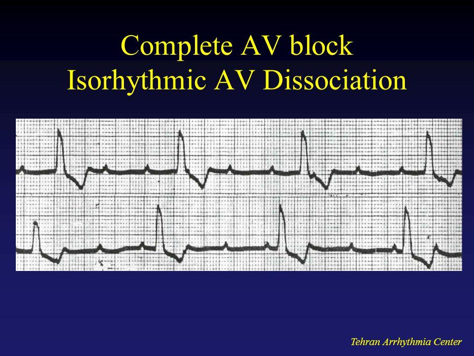 Complete AV block Isorhythmic AV Dissociation