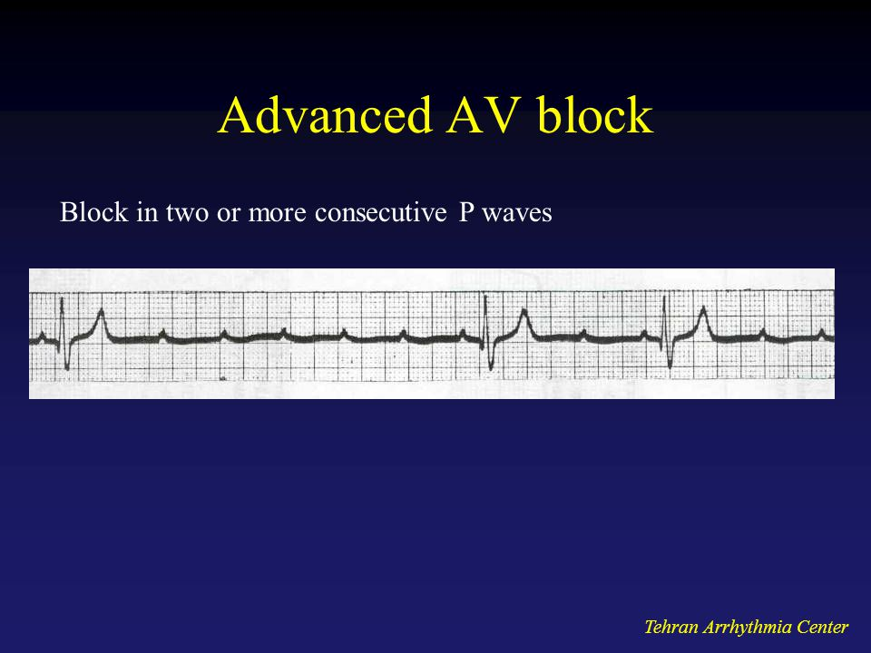 Advanced AV block Block in two or more consecutive P waves