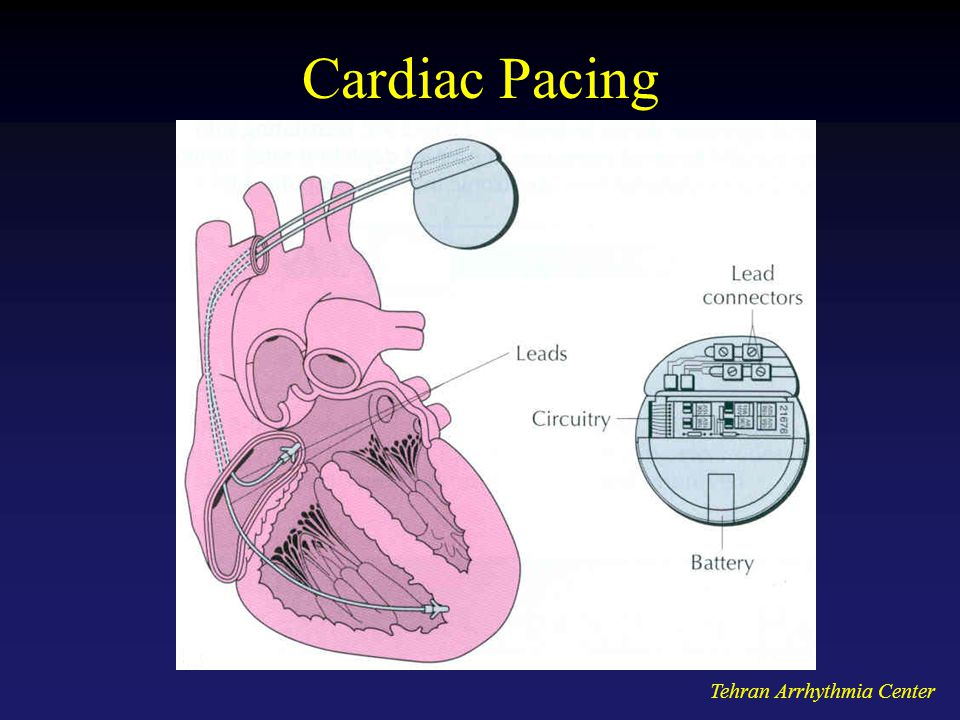 Cardiac Pacing Tehran Arrhythmia Center