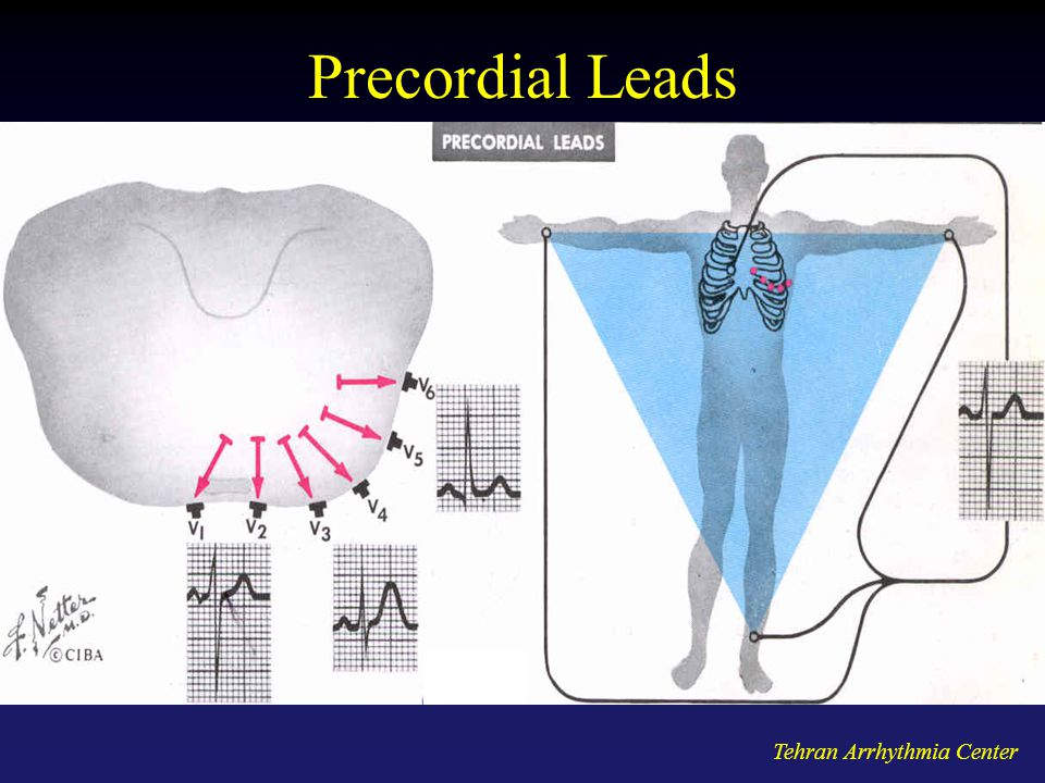 Precordial Leads Tehran Arrhythmia Center