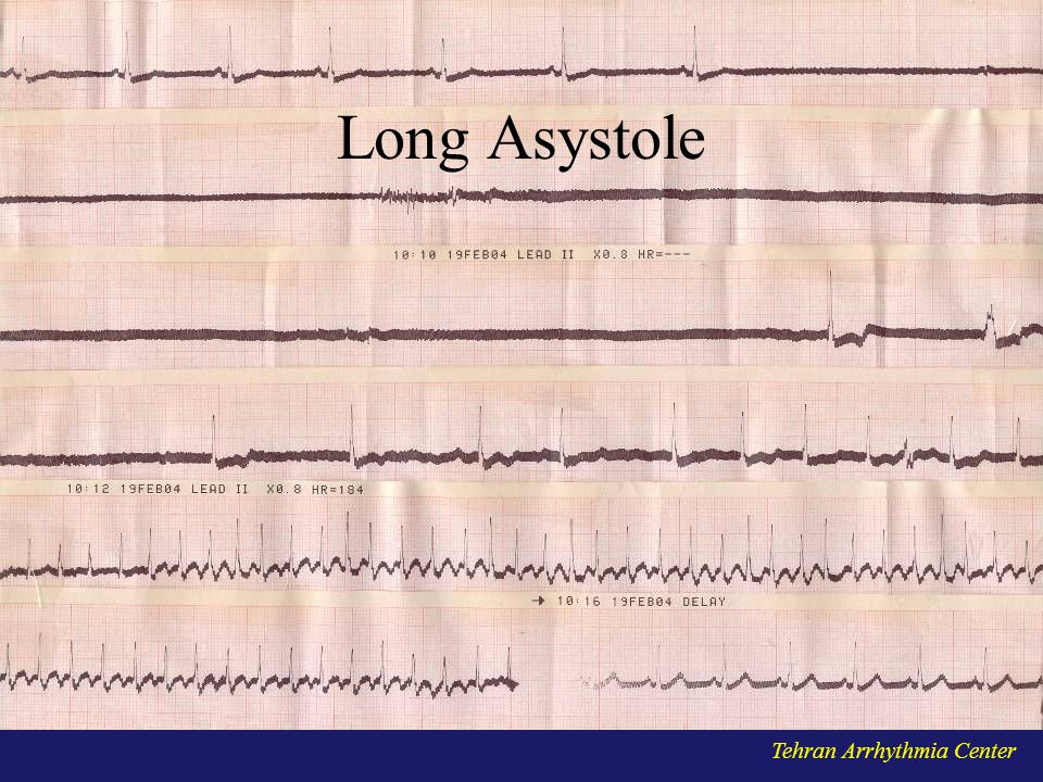 Long Asystole Tehran Arrhythmia Center