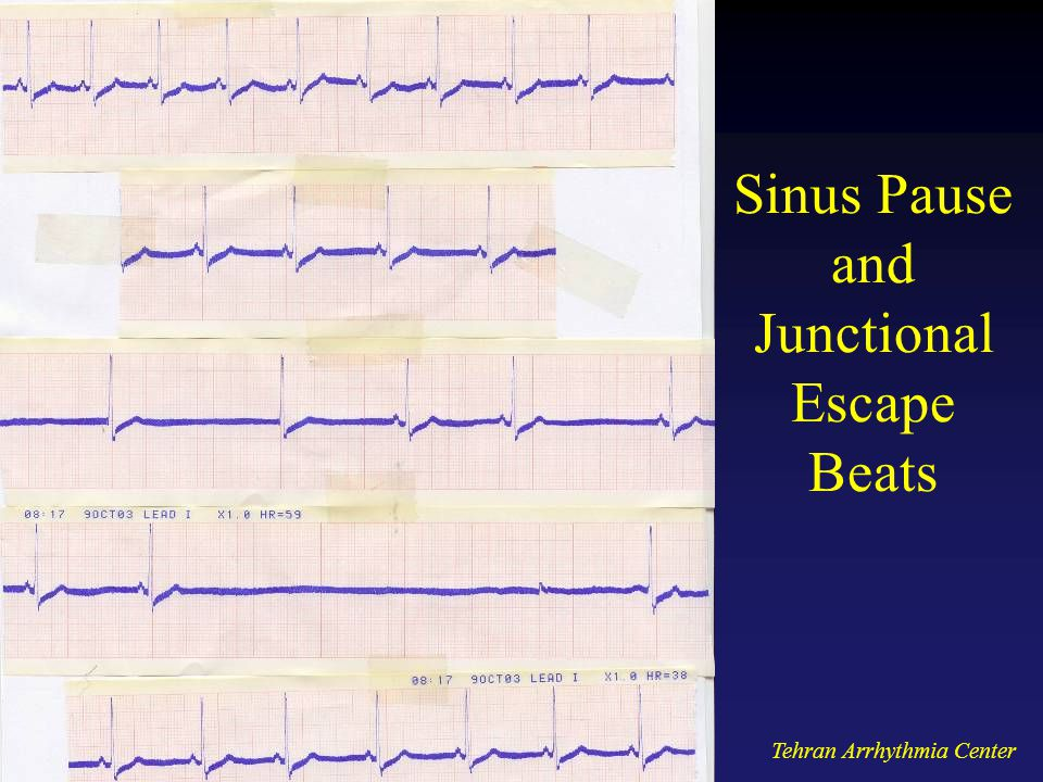 Sinus Pause and Junctional Escape Beats