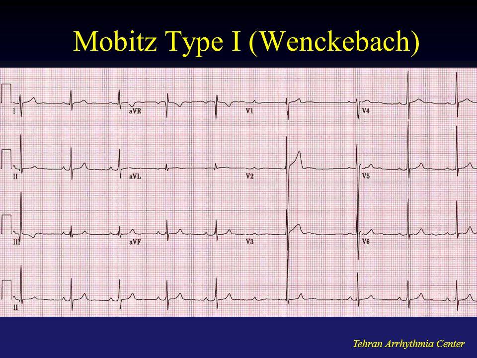 Mobitz Type I (Wenckebach)