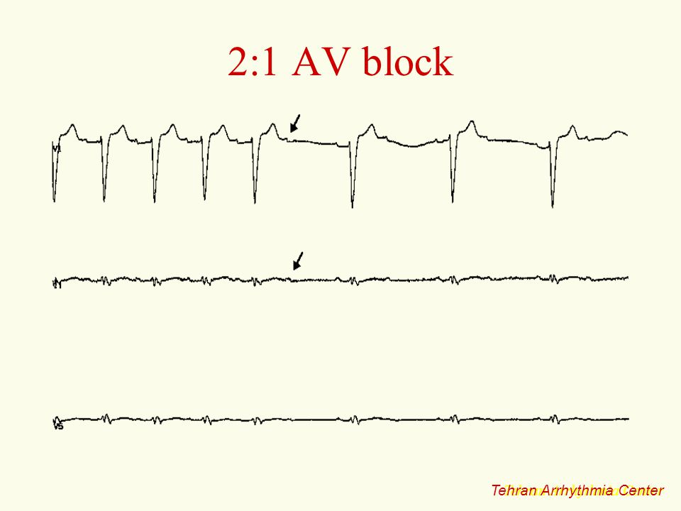 2:1 AV block Tehran Arrhythmia Center Tehran Arrhythmia Center
