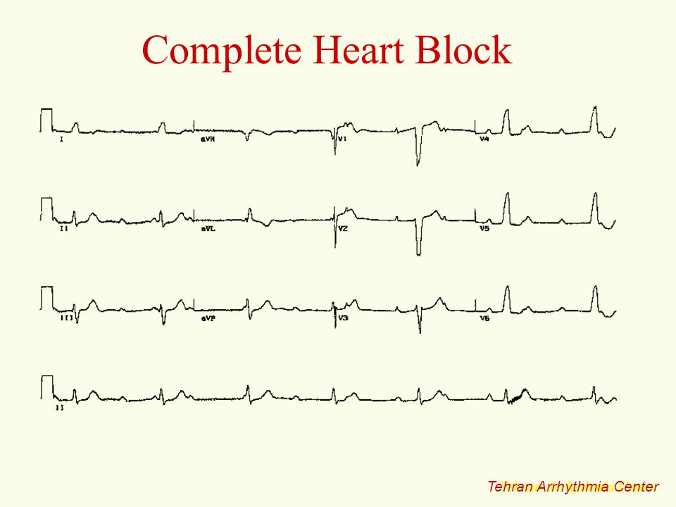 Complete Heart Block Tehran Arrhythmia Center Tehran Arrhythmia Center