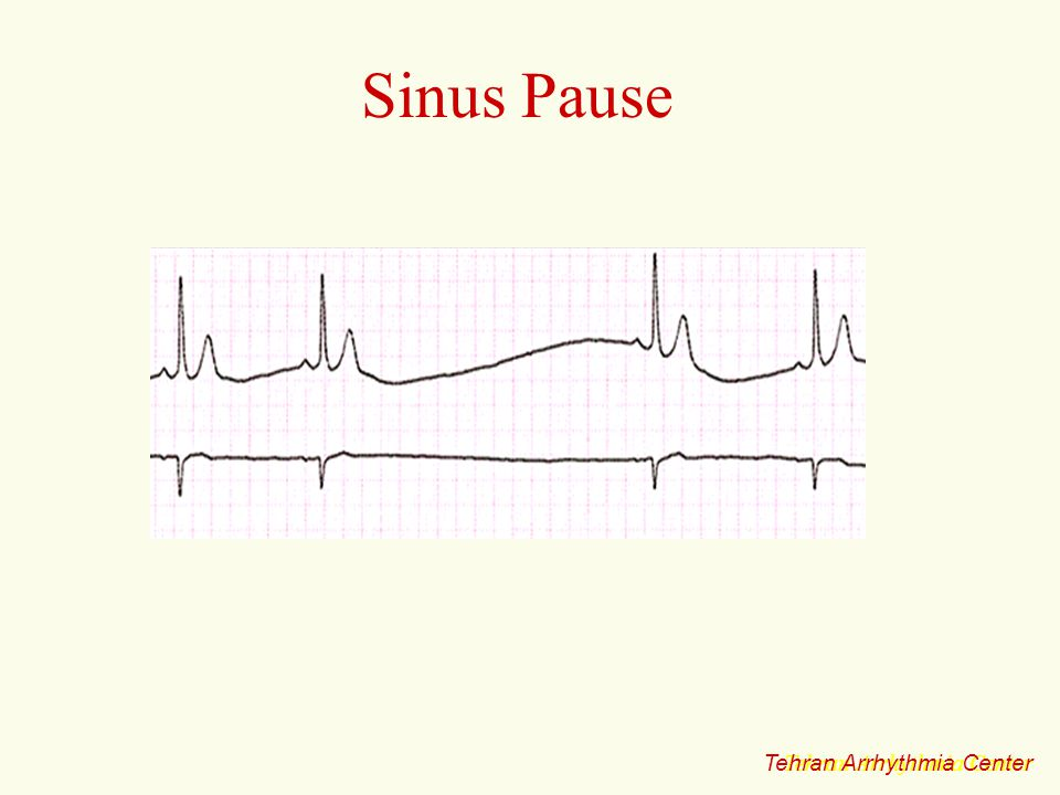 Sinus Pause Tehran Arrhythmia Center Tehran Arrhythmia Center