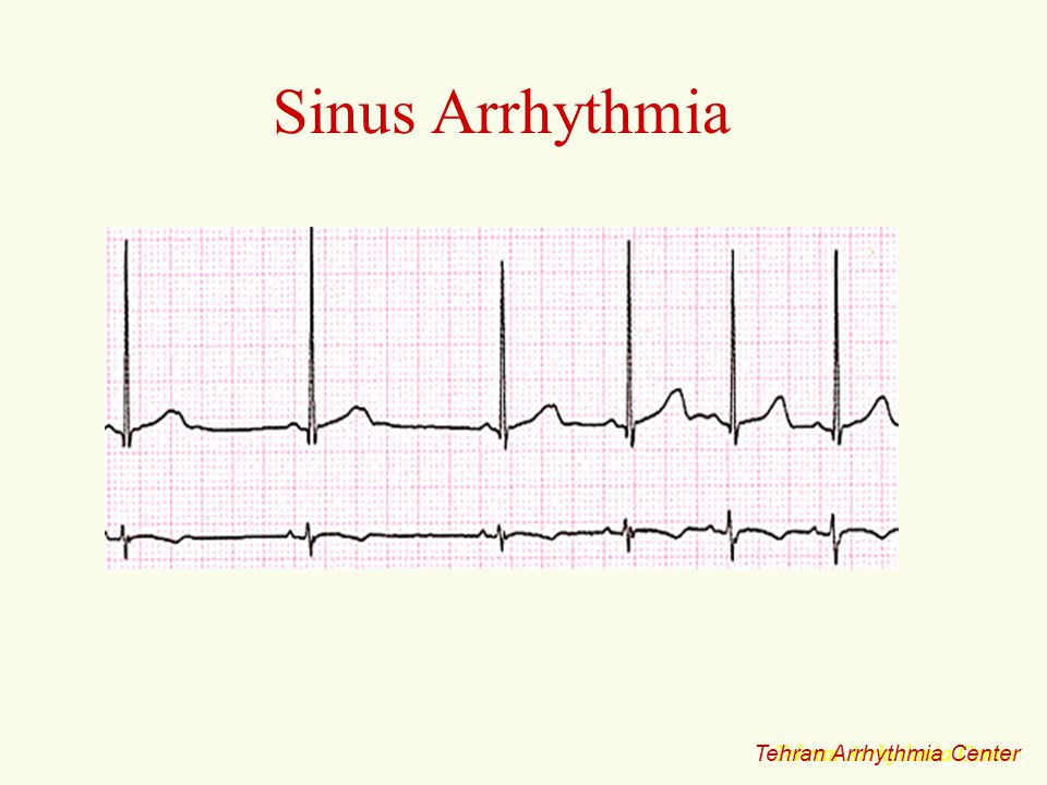 Sinus Arrhythmia Tehran Arrhythmia Center Tehran Arrhythmia Center