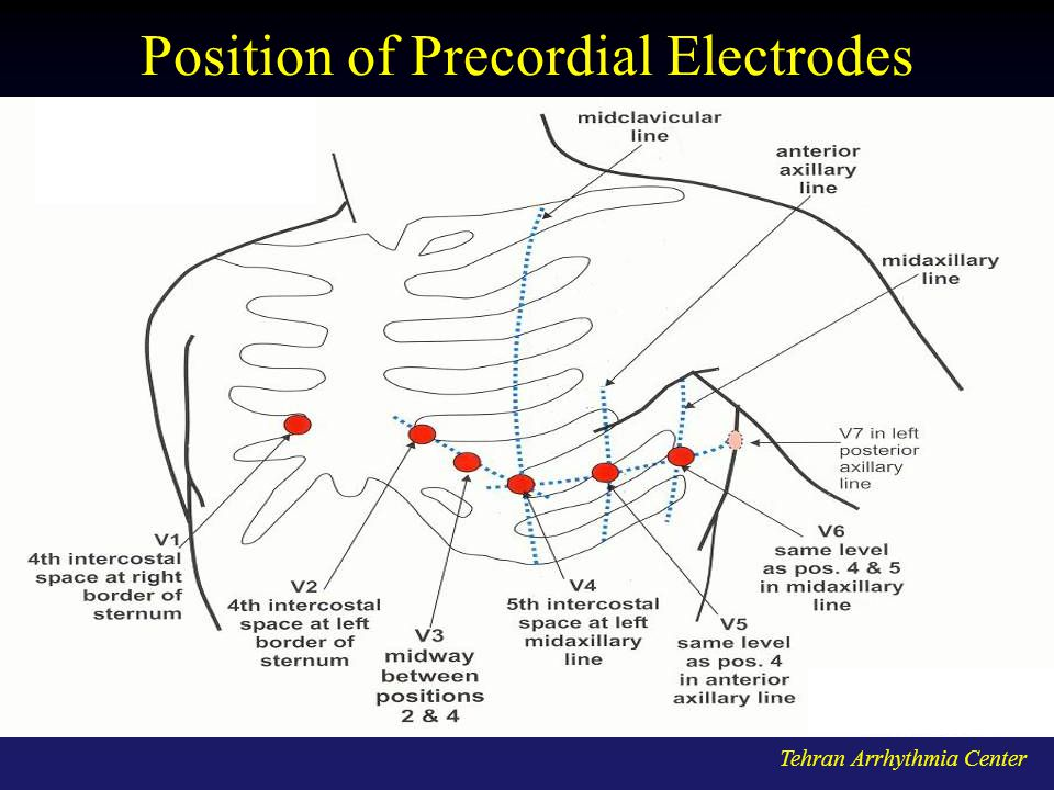 Position of Precordial Electrodes