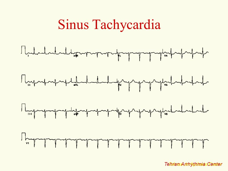Sinus Tachycardia Tehran Arrhythmia Center Tehran Arrhythmia Center