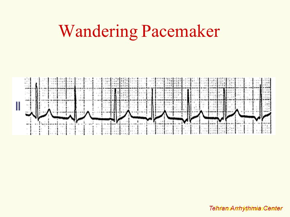Wandering Pacemaker Tehran Arrhythmia Center Tehran Arrhythmia Center