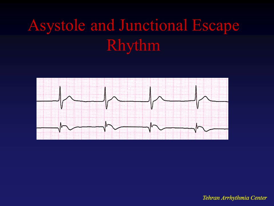 Asystole and Junctional Escape Rhythm