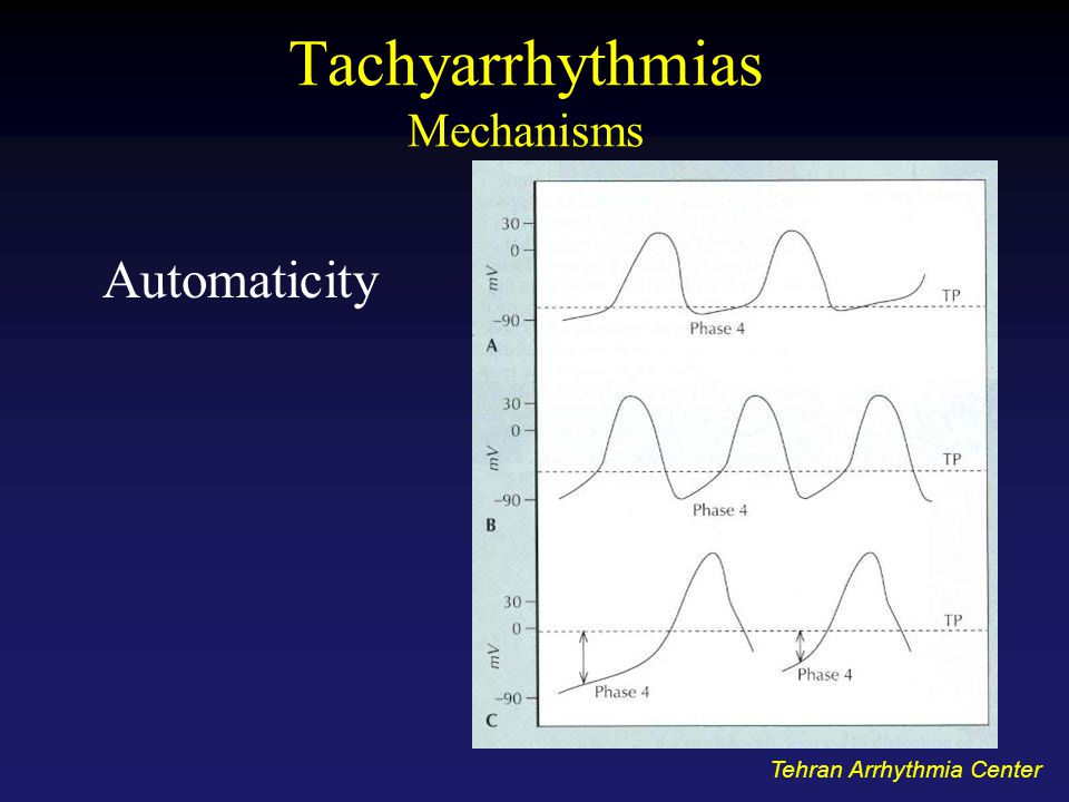Tachyarrhythmias Mechanisms