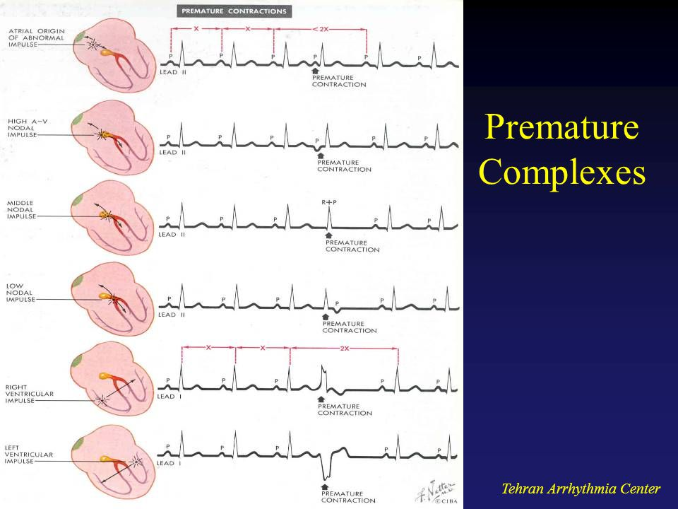 Premature Complexes Tehran Arrhythmia Center