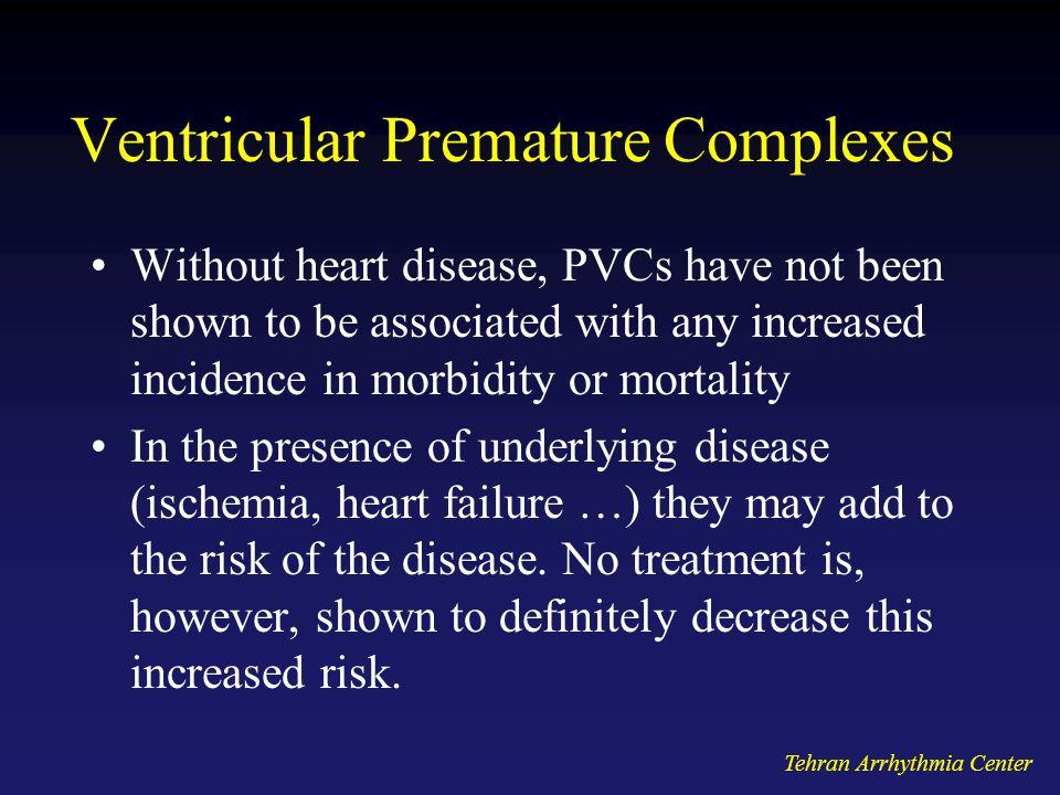 Ventricular Premature Complexes