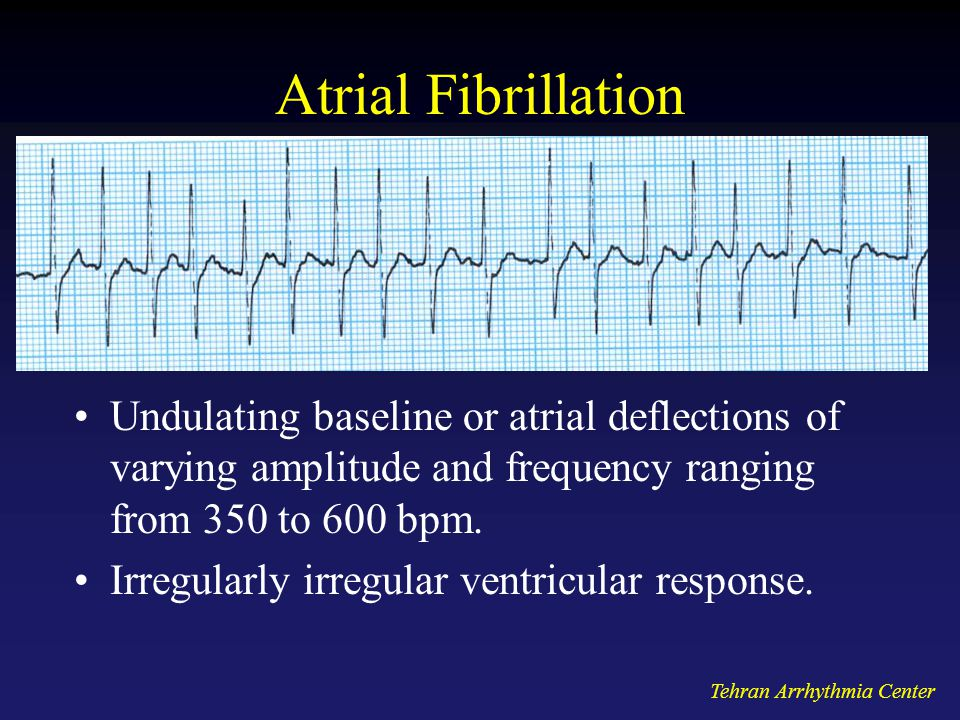 Atrial Fibrillation Undulating baseline or atrial deflections of varying amplitude and frequency ranging from 350 to 600 bpm.