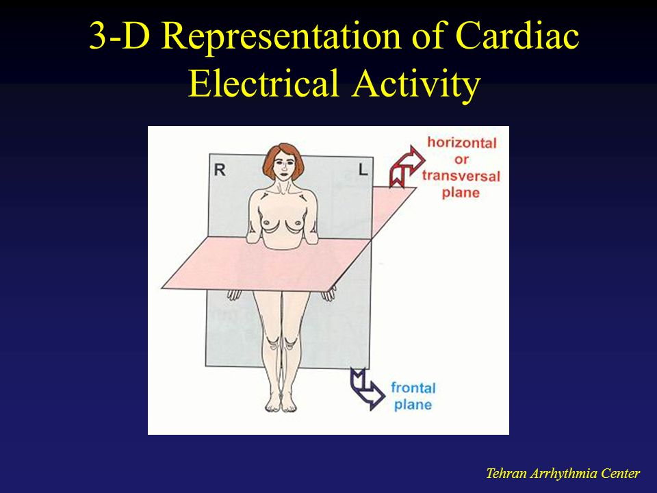 3-D Representation of Cardiac Electrical Activity