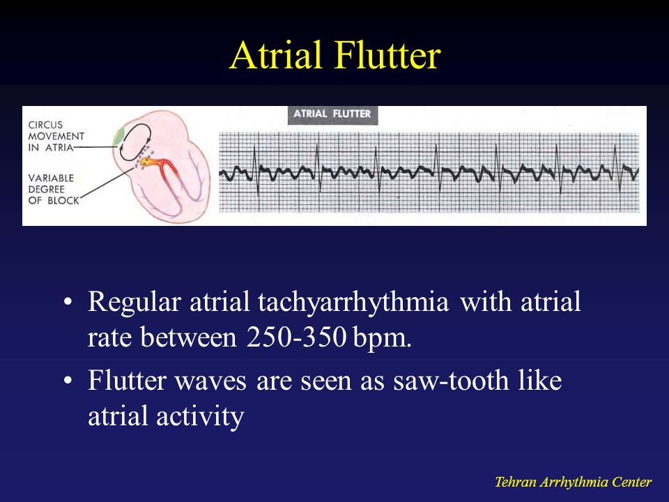 Atrial Flutter Regular atrial tachyarrhythmia with atrial rate between 250-350 bpm. Flutter waves are seen as saw-tooth like atrial activity.