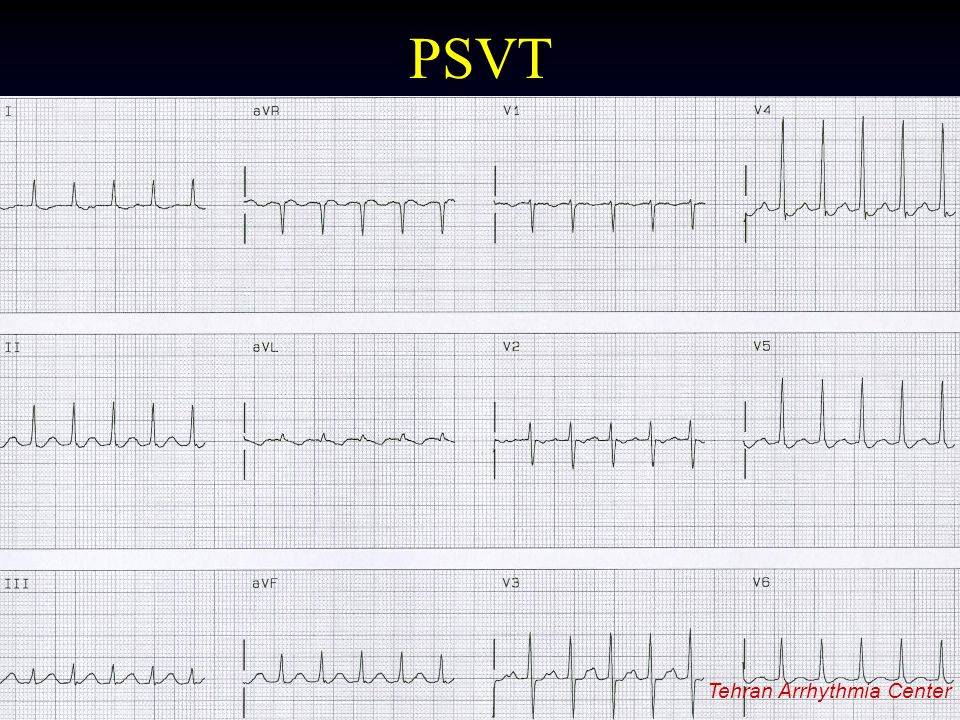 PSVT Tehran Arrhythmia Center Tehran Arrhythmia Center