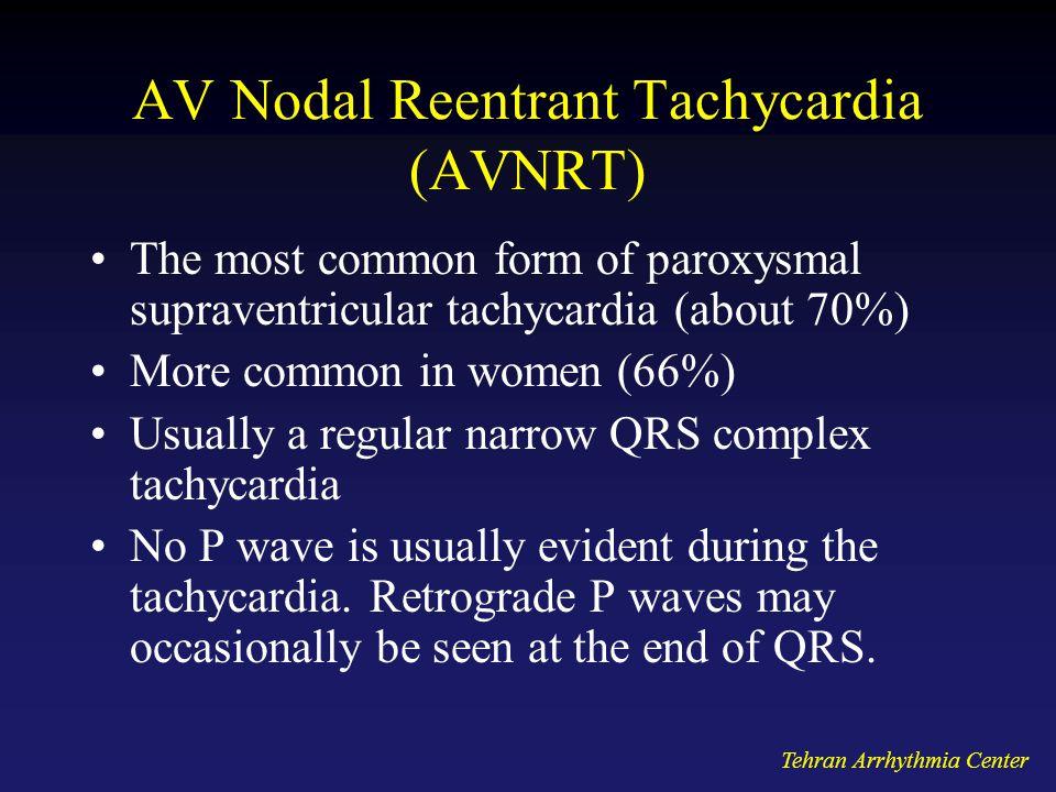 AV Nodal Reentrant Tachycardia (AVNRT)