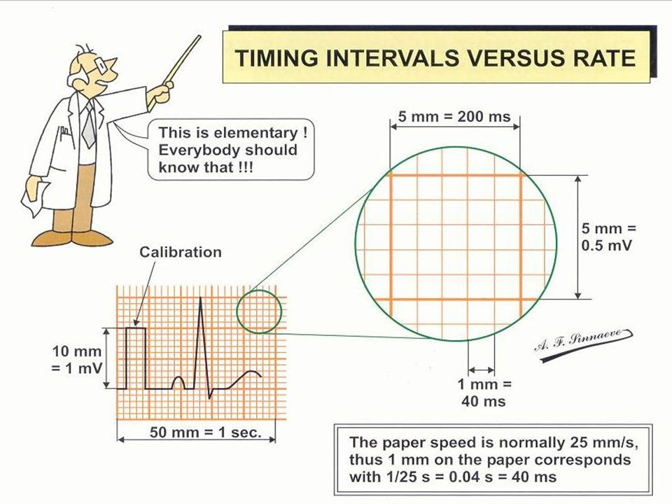 Timing Intervals Tehran Arrhythmia Center