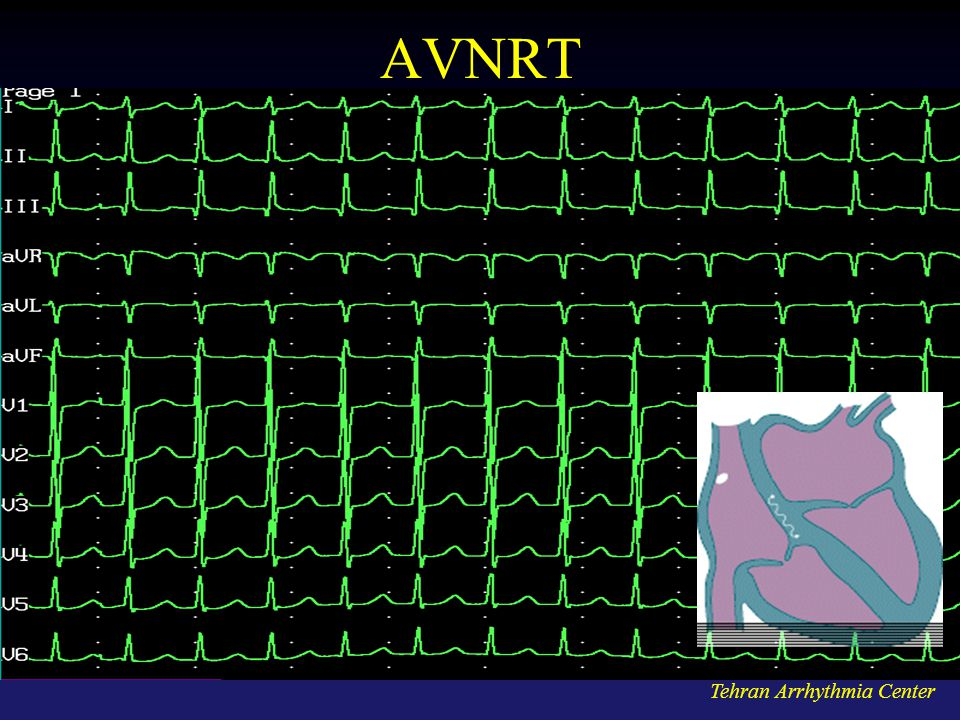 AVNRT Tehran Arrhythmia Center