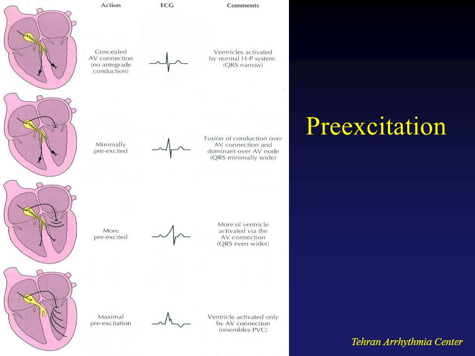 Preexcitation Tehran Arrhythmia Center