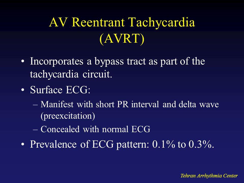 AV Reentrant Tachycardia (AVRT)