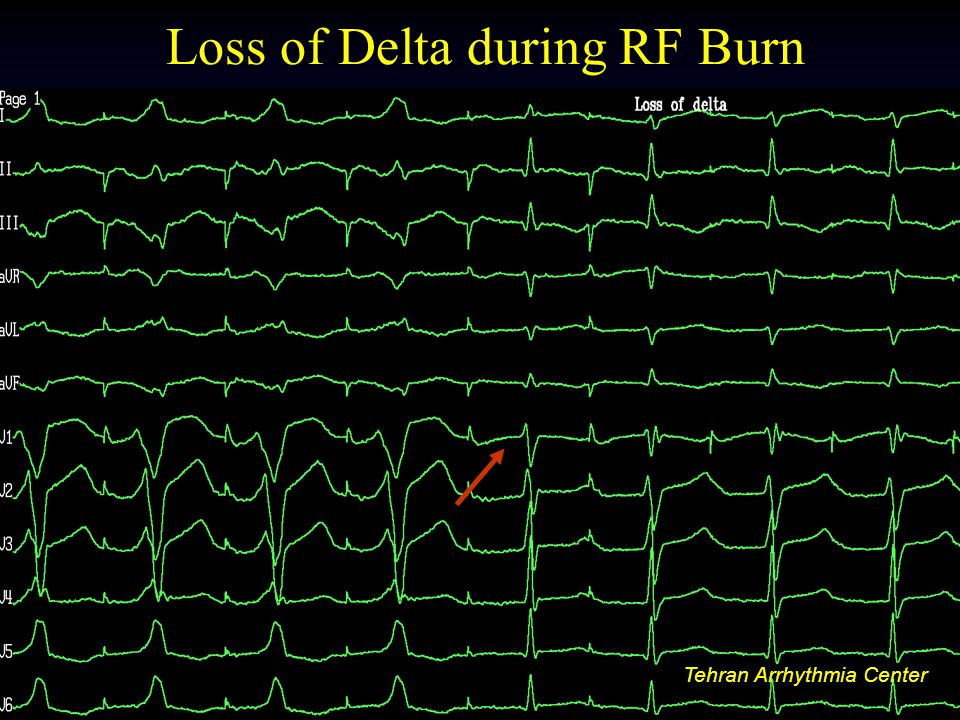 Loss of Delta during RF Burn
