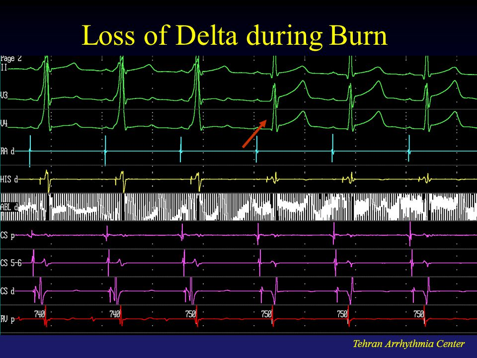 Loss of Delta during Burn
