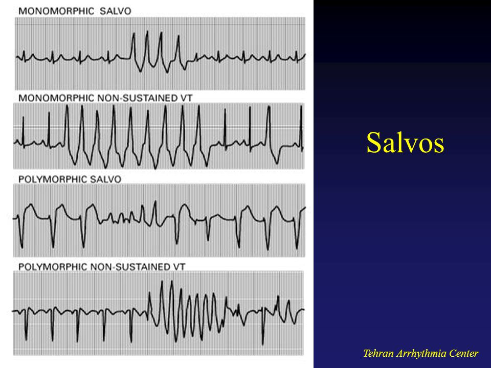 Salvos Tehran Arrhythmia Center