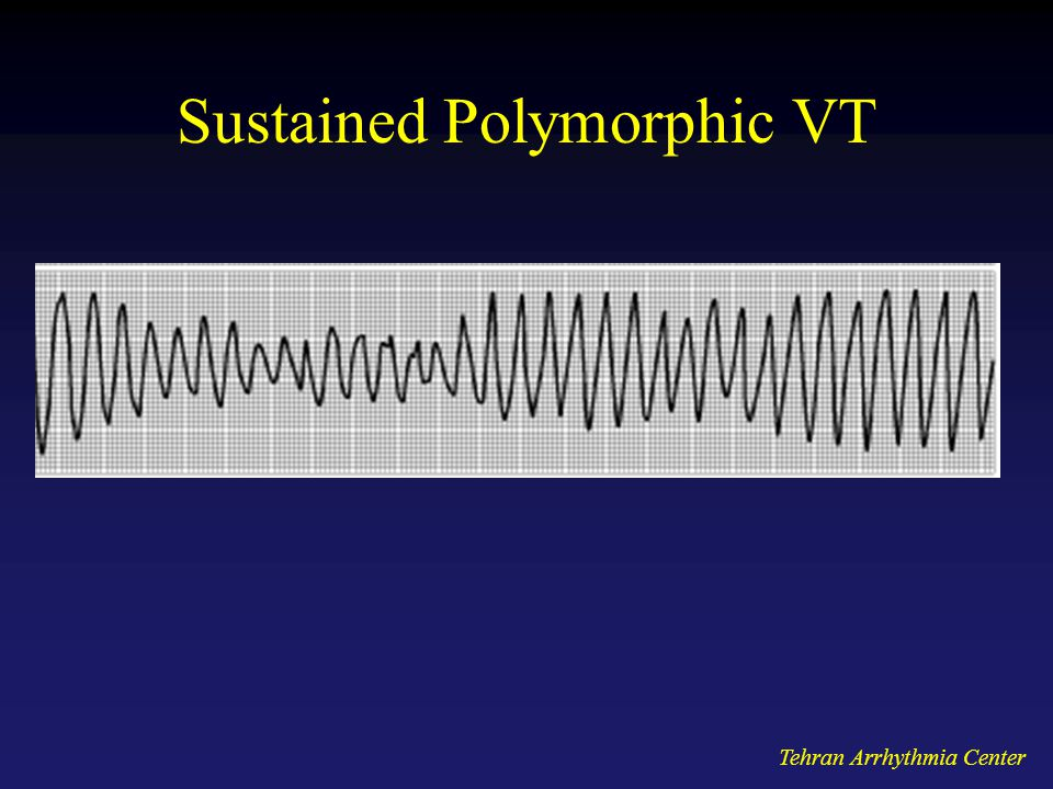 Sustained Polymorphic VT